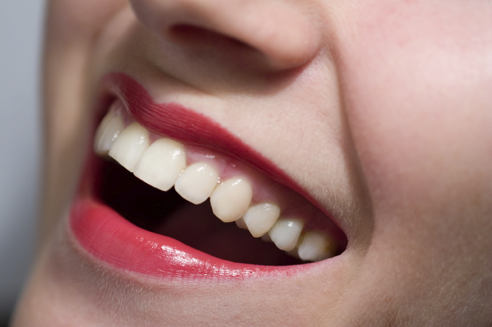 how to get better teeth without braces