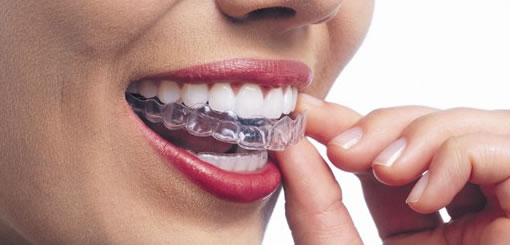 How Well Does Invisalign® Work?