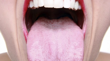 brush-your-tongue-436x245