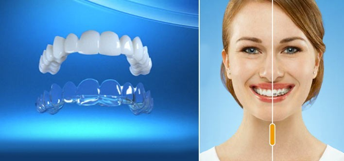 How Invisalign Is Improving Braces For Millions!