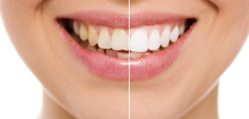 123 Dentist's Guide To A Whiter Smile