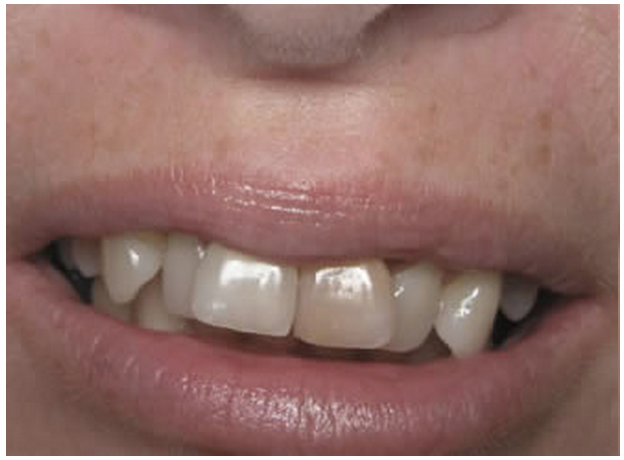 Cosmetic Dentistry: The Journey To A Perfect Smile - 123Dentist