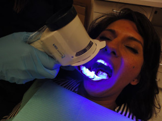 velscope exam for oral cancer on woman