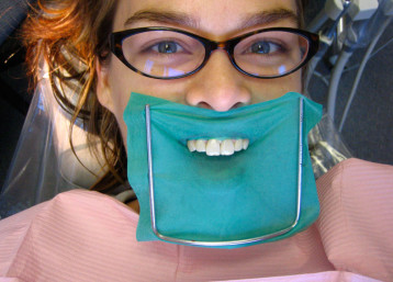 dental dam smiling teeth woman glasses dental office exam cleaning