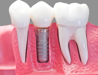 A dental implant works exceptionally well to anchor replacement teeth.