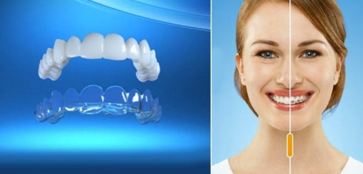 The Lowdown On Invisalign