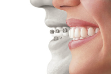 For complex orthodontic work, regular metal braces are often still the best choice to do the heavy lifting.