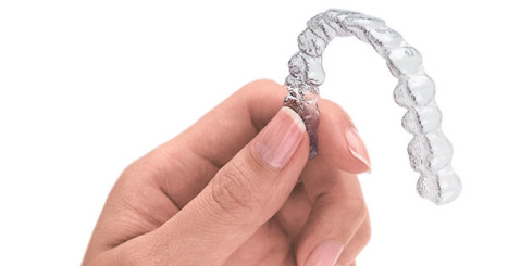 A typical Invisalign aligner tray.