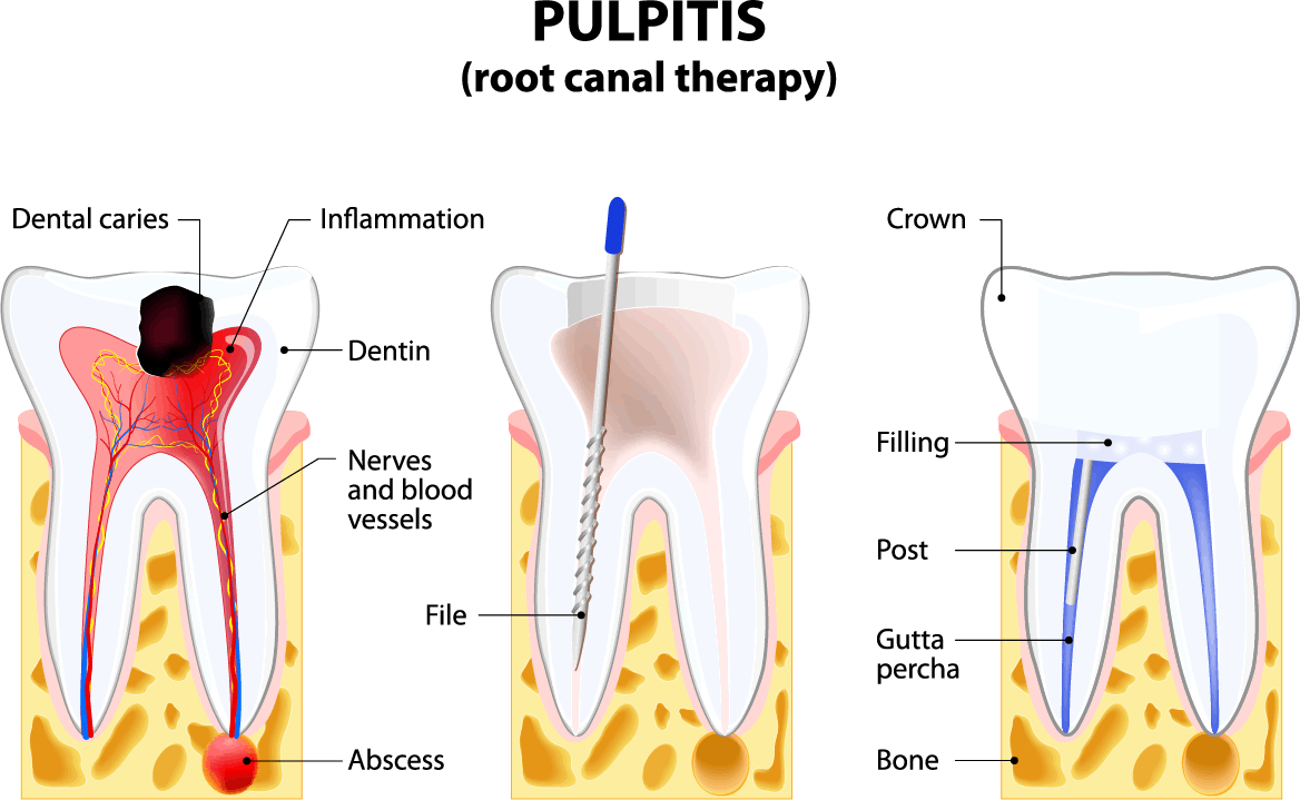 What's Involved in Root Canal Therapy? - from 123Dentist
