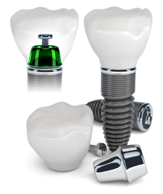 dental implant components and see-through version