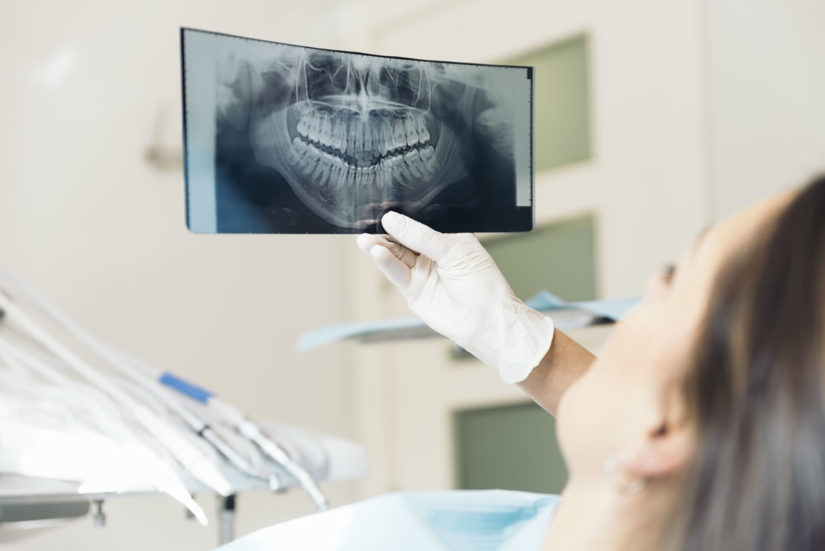 Everything you need to know about dental x-rays