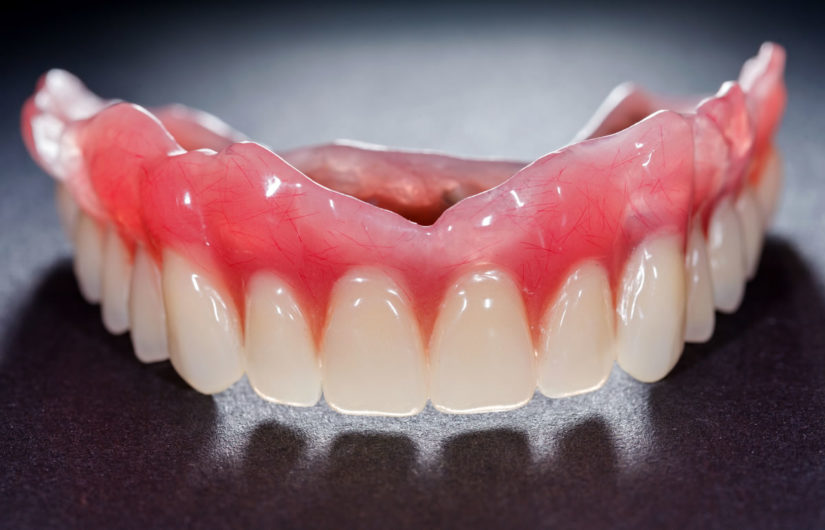 What is denture adhesive and do I need it?