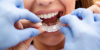 Orthodontist with Invisalign Patient