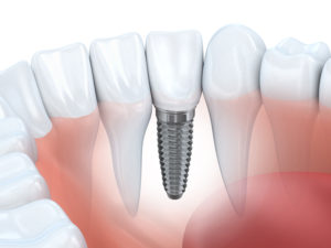 Dental Implants function as real teeth