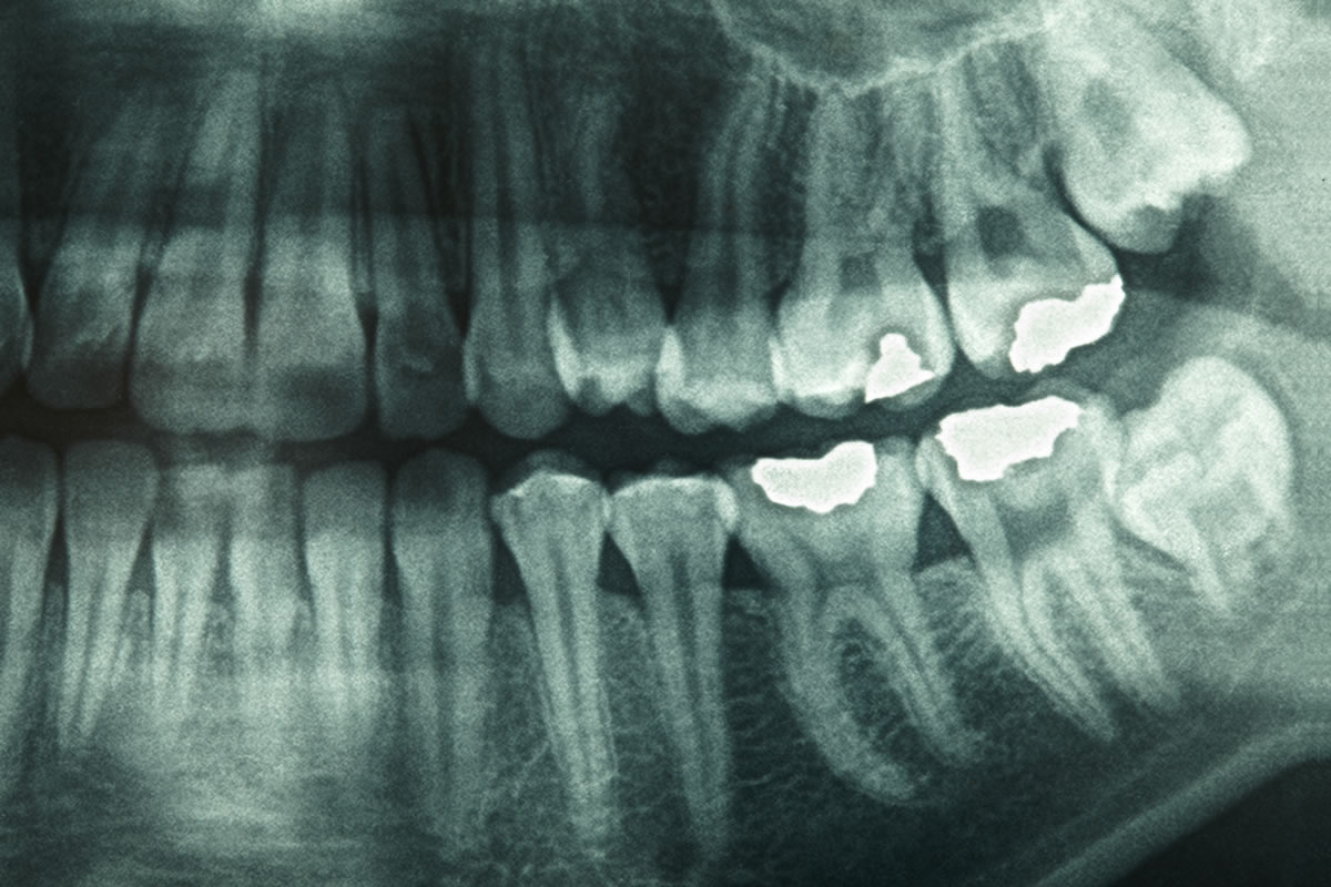 Are Dental X-Rays Safe? See These Diagrams - Teeth FAQ Blog