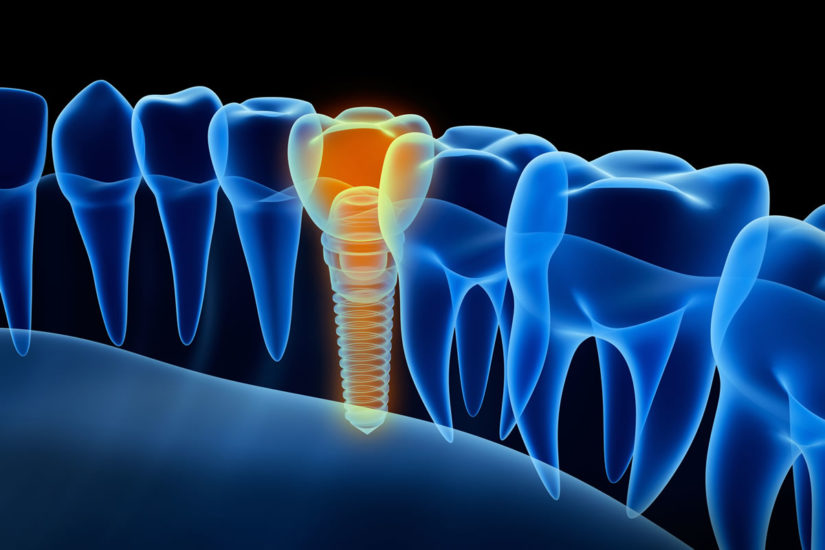 Dental Implants – Questions & Answers