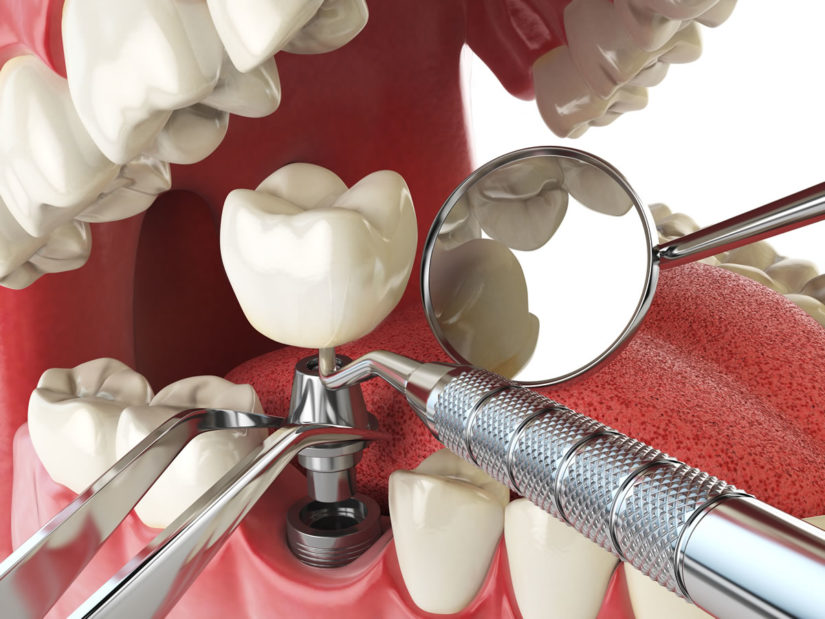 Defining Dental Implant Key Terms - from 123Dentist