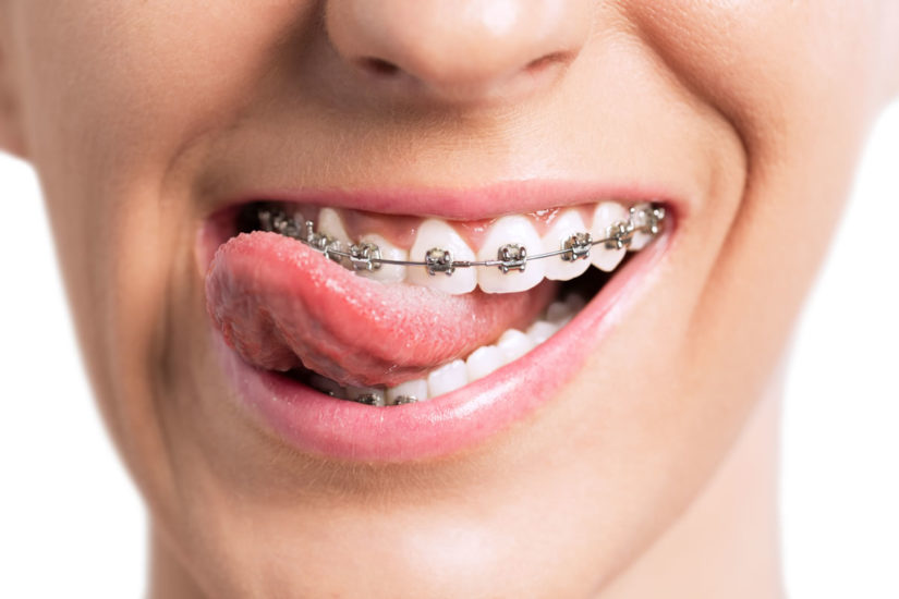 What is an Orthodontist? A guide from 123Dentist