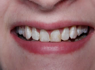 In this example, we were able to do some instant orthodontics, and cover the discolourations at the same time