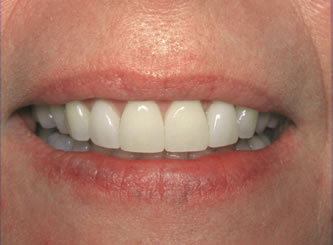 Years of wear on these teeth easily reversed with 4 porcelain veneers and whitening