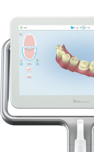 Orthodontists can also create better Invisalign treatment plans for their patients using iTero intraoral scans.