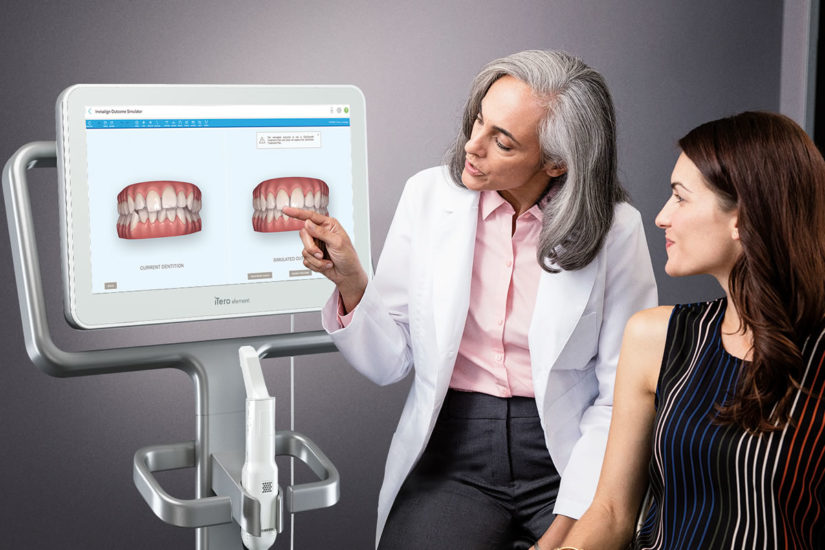 iTero Intraoral Digital Scanners – Everything You Need to Know