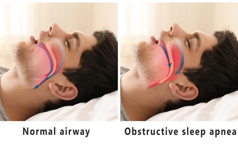 Sleep Apnea – How Your Dentist Can Help