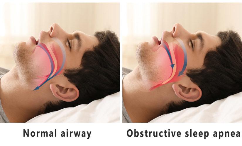 Sleep Apnea – How Your Dentist Can Help