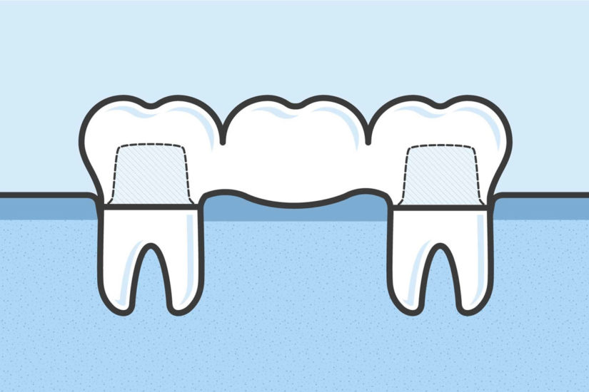 What are Dental Bridges and How Do They Work?