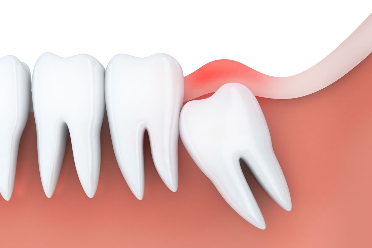 The Wisdom Tooth Removal Process in 2018 - from 123Dentist
