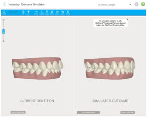 Example of Invisalign before and after comparison