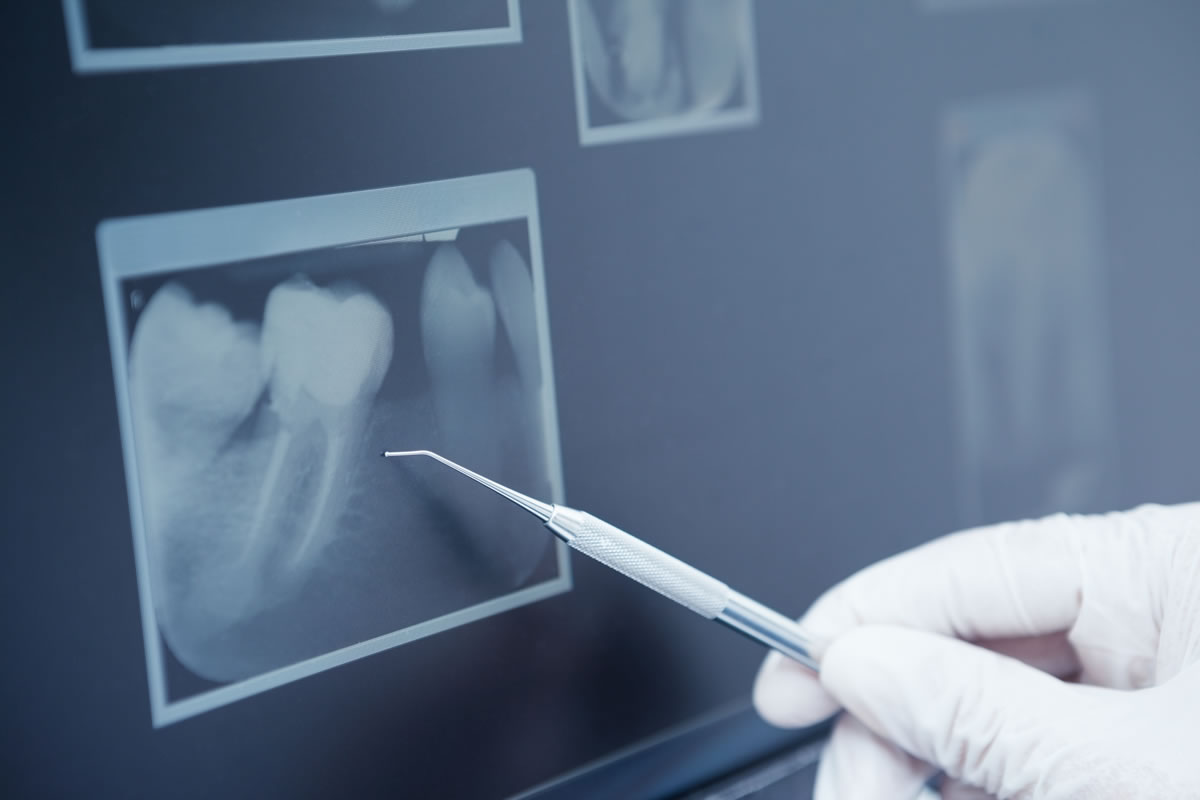About Hairline Tooth Fractures (cracks) - from 123Dentist