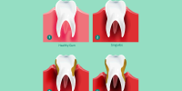 Gum Disease / Gingivitis: How to avoid it or treat it